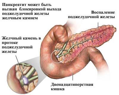 Воспаление-поджелудочной