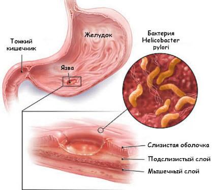 Язва-желудка